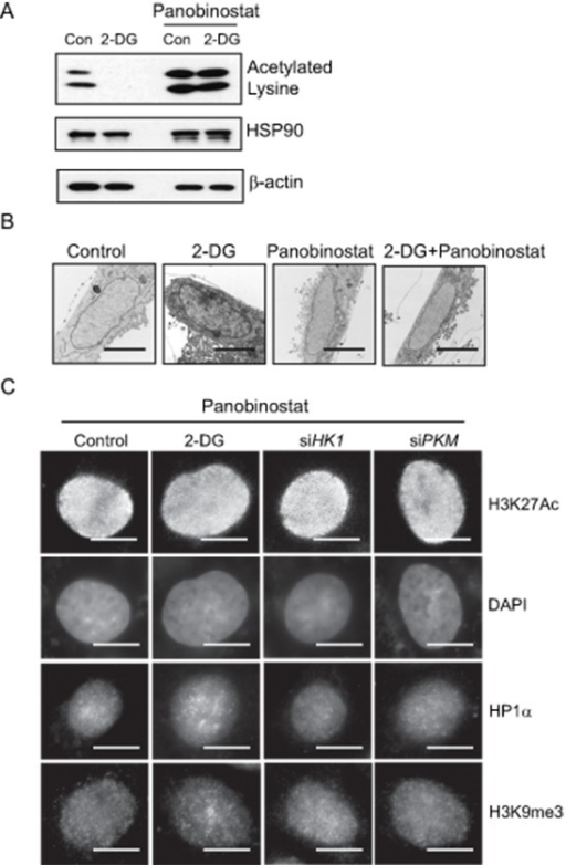 Role of histone acetylation in regulating glycolysis induced chromatin structure changes(A) HDAC inhibitor panobinostat (80 nM) was added to cells treated with or without 2-DG. Histone acetylation was detected by immunoblot with a lysine acetylation specific antibody. HSP90 and β-actin blots serve as loading controls. (B) Transmission electron microscopy analysis was performed in A549 cells treated with control, 2-DG (10 mM), panobinostat (80 nM) or in combination. Scale bar is 5 μm. (C) Immunofluorescent staining with H3K27Ac, or heterochromatin marker HP1α and H3K9me3 antibody in A549 cells treated with 2-DG or transfected with siRNA targeting HK1, PKM in the presence of panobinostat (80 nM). Scale bar is 5 μm.