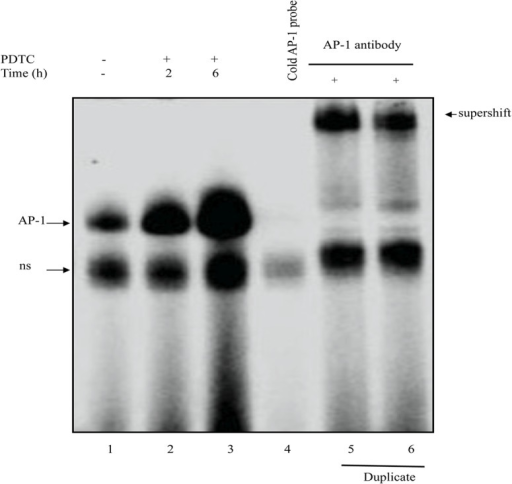 Gel-shift analysis of the effects of PDTC on nuclear factors bound to the AP-1 probe.EMSA experiments were performed using nuclear extracts from control (lane 1) and PDTC-treated U937 cells for 2 (lane 2) and 6 h (lane 3) and a 32P-labeled double-stranded AP-1 oligonucleotide as a probe. Competition experiments were performed by pre-incubating nuclear extracts from control cells with 100 x excess cold AP-1 double-stranded oligonucleotides (lane 4) or anti-AP-1 antibody (lane 5 & 6 are duplicates) for supershift prior incubation with labeled AP-1 probe addition. Results are representative of three independent experiments. Unspecific bands (ns)