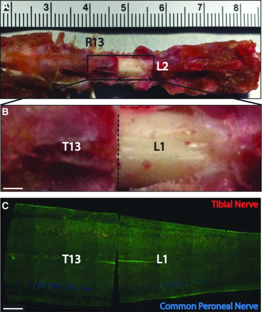Retrograde labeling of tibial and common peroneal nerve, and anatomy of rat's spine and spinal cord. (A) Anatomy of rat's spine and spinal cord, exposed by a L1 laminectomy. (B) Enlarged box area in A. The lower margin of T13 laminae is indicated by a dashed line. (C) Motoneurons labeled by fluororuby (red) and fluorogold (blue) backfilled respectively from the tibial nerve and common peroneal nerve by retrograde labeling. The spinal cord cut between T13 and L1. R13, rib 13; T13, vertebra T13; L1, L1 vertebra; L2, L2 vertebra. Scale bar, 500 μm.