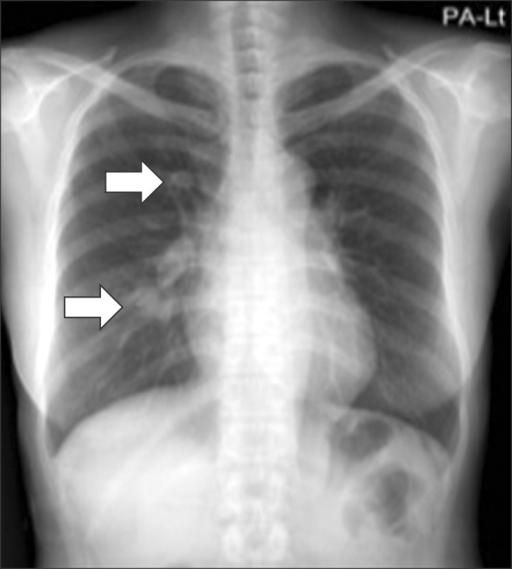 Chest X-ray showing multiple lung nodules with multifocal haziness in the right lung.