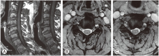 Magnetic resonance imaging; (A) sagittal and (B, C) axial views. Anterior C4-5 disc herniation causing compression of the esophagus. Right-sided C5-6 disc herniation with root compression.