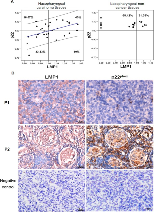 A positive correlation between LMP1 and p22phox expression was detected in nasopharyngeal carcinoma.A: The distributions of NPC tissue samples and non-NPC tissue samples with LMP1high/ p22phox high, LMP1low/p22phox low, LMP1high/p22phox low and LMP1low/p22phox high were determined with SPSS correlation analysis. B: In a tissue array, the p22phox and LMP1 expression levels were detected in NPC cancer tissues using an IHC assay. P1 and P2 represents two NPC tissues from patients with distinctive p22phox and LMP1 expression pattern. P1 tissue has low p22phox and LMP1 expression level, and P2 has higher LMP1 and p22phox expression level. NPC tissue sample with LMP1 negative and p22phox were served as negative control (magnification × 400).