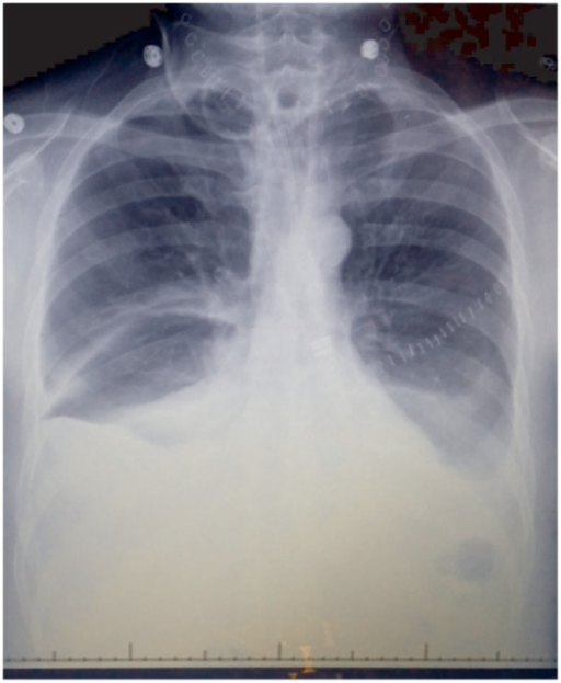 Chest X-ray 1 week after the surgery, interpreted as bilateral basilar atelectasis. Staples over the left thorax are a result of left pectoralis major pedicled myocutaneous flap reconstruction.