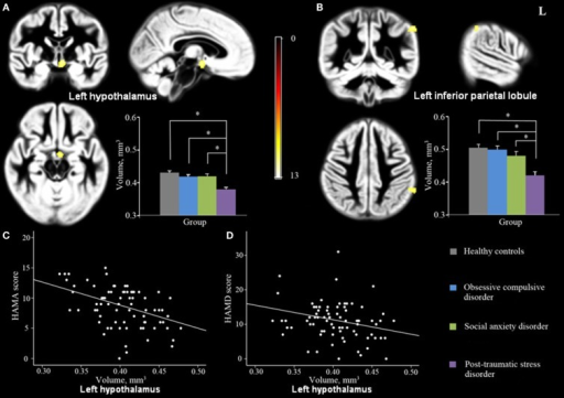 Significant GMV differences were observed among PTSD, OCD, SAD and controls in left hypothalamus (A) and left IPL (B) shown projected onto the gray matter template built using DARTEL. Significant correlations were also observed between GMV in left hypothalamus and HAM-A (C) and HAM-D (D) scores. (Pcluster-level < 0.05 with a minimum cluster size of 70 voxels after FWE correction for whole-brain volume, age, and gender). Abbreviations: GMV, gray matter volume; DARTEL, Diffeomorphic Anatomical Registration Through Exponentiated Lie; HAM-A, Hamilton Rating Scale for Anxiety; HAM-D, Hamilton Rating Scale for Depression; IPL, inferior parietal lobule.