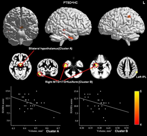 Significant GMV decrease in patients with PTSD compared with controls (upper panel) and correlations between HAM-A scores and GMV of Cluster A (bilateral hypothalamus; Peak, x = −5, y = −4, z = −9, MNI) and Cluster B (right MTG, right ITG, and right fusiform gyrus; Peak, x = 53, y = −25, z = −23, MNI; lower panel). (Pcluster-level < 0.05 after FWE correction for whole-brain volume, age, and gender). Abbreviations: MTG, middle temporal gyrus.