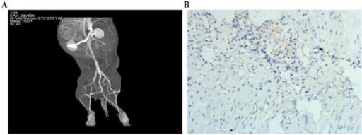 (A) Distal artery occlusion was observed in the ischemic limbs following ischemic experimentation. (B) Two New Zealand rabbits from each group were transplanted with 5-bromodeoxyuridine (Brdu)-labeled endothelial progenitor cells (EPCs), and the Brdu positive cells (brown) were observed. Magnification, ×200.