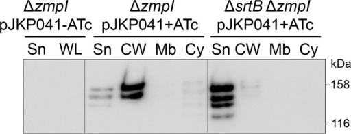 Role of SrtB in anchoring CD2831 to the cell wall. Supernatant (Sn), cell wall (CW), membrane (Mb), and cytosolic (Cy) compartment of zmpI mutant (ΔzmpI) and srtB/zmpI double mutant (ΔsrtBΔzmpI) strains, carrying pJKP041 (expresses CD2831 in the presence of ATc) and cultivated in the presence of 100 ng/ml ATc (+ATc) were analyzed by Western blotting with anti-CD2831 polyclonal antibodies. Supernatant and whole cell lysate (WL) fractions of ΔzmpI pJKP041 strain cultivated in the absence of ATc (−ATc) were also analyzed as negative controls.