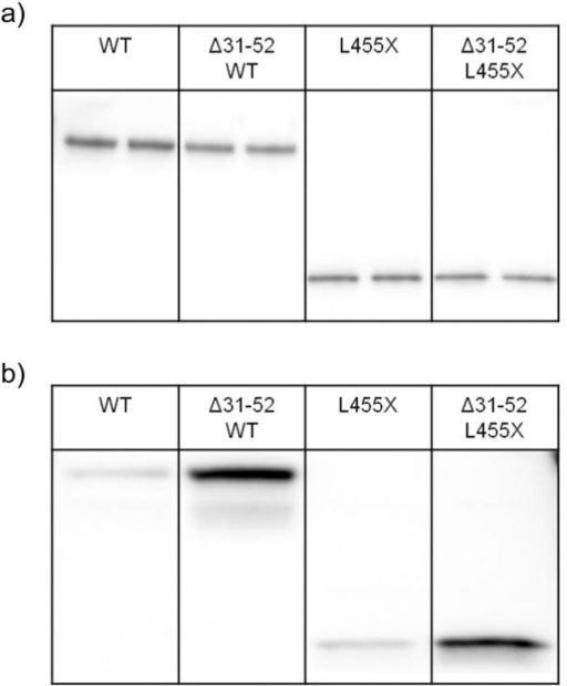 Pro31–52 of PCSK9 has an autoinhibitory effect also when the C-terminal domain is deleted. WT-PCSK9 (WT) or WT-PCSK9 with residues 31–52 deleted (∆ 31–52WT) were purified from stably transfected HEK293 cells. The concentrations of the two purified PCSK9 preparations were adjusted by concentration/dilution (panel a). Similar procedures were performed for purified L455X-PCSK9 which lacks the C-terminal domain (L455X) and L455X-PCSK9 with residues 31–52 deleted (∆ 31–52L455X). Duplicates are shown. CHO T-REx cells stably transfected with an LDLR plasmid were incubated with equal concentrations of each of the four purified PCSK9 preparations shown in panel a. The amounts of the different PCSK9 preparations internalized in the CHO T-REx cells were determined by Western blot analyses of lysates using an antibody against the C-terminal V5 epitope tag (panel b).