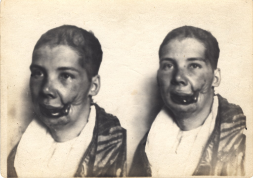 <p>Black and white photograph of an injured soldier with facial wounds posing at two different angles. A wound on the left side of the patient's face shows significant trauma to the cheek and lower part of the mouth.</p>