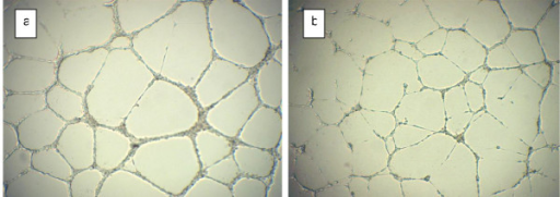 Effect of NOS inhibitor L-NAME on capillary formation by endothelial cells. Comparison of the capillary tube structure for endothelial cells treated by 2 mM of nitric oxide synthase inhibitor (b) with control well (a).