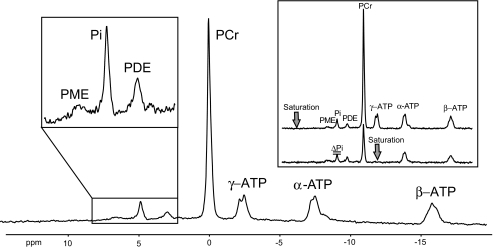 31P magnetic resonance spectrum acquired at 3-T using a surface coil (repetition time = 15 s, number of scans = 16) positioned under the calf muscle of one participant. The spectrum shows intramyocellular phosphomonoesters (PME) including G6P, Pi, PDEs, phosphocreatine (PCr), and ATP. Inset: 31P spectra with saturation of γ-ATP (bottom) and with saturation mirrored around Pi (top), which was always used to account and correct for direct saturation of the resonance frequency pulse.