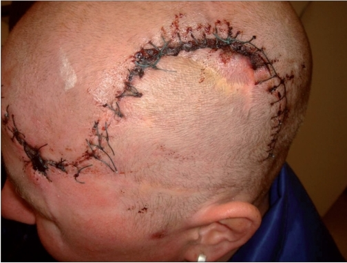 Image Gallery scalp sutures