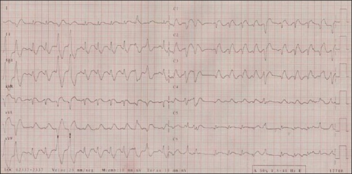 Electrocardiogram on admission depicting 1 mm ST segment elevation in lateral leads with associated right bundle branch block and ventricular beats in couplet