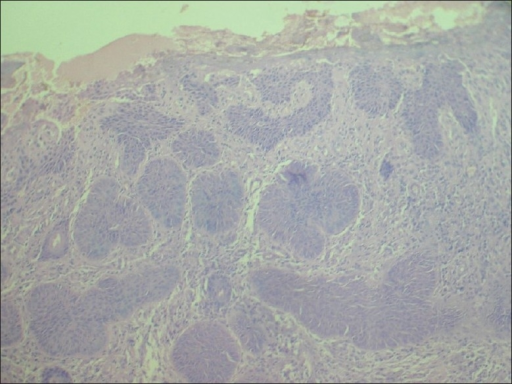 Basaloid cells in upper dermis in a case of periungual BCC (H and E, 10×)