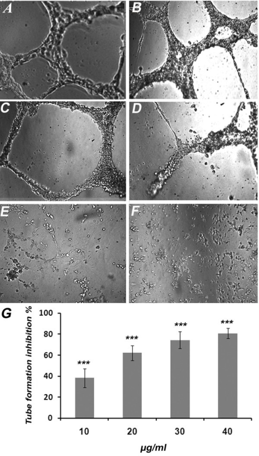 Effects of KA on HUVECs Differentiation. Effect of KA on matrigel tube formation of endothelial cells. Cells treated with (A) 1% ethanol (B) 10 μg/ml (C) 20 μg/ml and (D) 30 μg/ml (E) 40 μg/ml and (F) 100 μg/ml suramin as a positive control (4X). (G) The Dose response relationship of KA on rat aorta assay. The inhibitory effect was found to be in dose response manner. Data was represented as mean ± SD (n = 3). ***P <0.001.