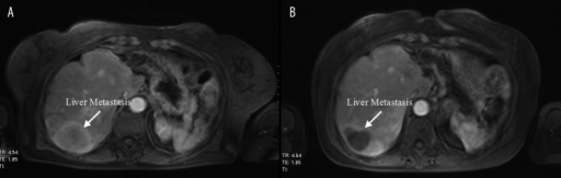 Liver Metastasis in segment VII before (A) and after (B) TACE.