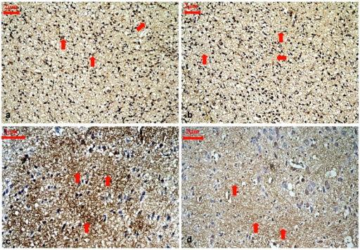Representative immunohistochemical staining for ARPC5 protein expression in the cortical layer III and IV of control rats and hypothyroidism rats during development, 400×. (a): P1 control. ARPC5 was diffusely expressed and predominantly found in neurites (⇒ red). (b):P1 hypothyroidism. The distribution and cellular location were similar to P1 control group. (c): P15 control. ARPC5 was found in neurites. The intensity of ARPC5 staining was higher in control rats (⇒ red). (d): P15 hypothyroidism. ARPC5 was found in neurites. The intensity of ARPC5 staining was lower in hypothyroid rats (⇒ red).