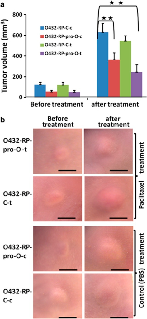 Forced restoration of prostasin represses and re-sensitizes chemoresistant tumors. (a) Overexpression of prostasin represses and re-sensitizes chemoresistant tumors. O432-RP-pro-O cells (stably transfected with prostasin cDNA) or control cells O432-RP-C (stably transfected with control pCI-neo vector) were injected into the left and right flanks of mice, respectively. The animals were treated with paclitaxel (15 mg/kg/week) or control vehicle PBS for 2 weeks after the tumors reached about 100 or 50 mm3. Tumor volumes before and after treatment are shown. O432-RP-psp-O-c and O432-RP-psp-O-t: PBS- and paclitaxel-treated O432-RP-psp-O tumors; O432-RP-C-c and O432-RP-C-t: PBS- and paclitaxel-treated O432-RP-C tumors. n=6 per group, **P<0.01. Mean±s.d. are given, and the P-values were calculated using the two-sided Student's t-test. (b) Tumors in mice before and after treatments. Scale bar=5 mm