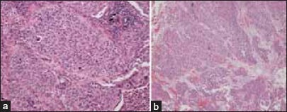 (a) Photomicrograph of tumor resected from the left lower lobe showing a carcinoma with morphological features in keeping with metastatic transitional cell carcinoma. This interpretation was supported by immunohistochemical staining which showed characteristic expression of CK7, CK20, and nuclear staining for p63. Similar appearing metastatic carcinoma was also identified within hilar lymph nodes removed at the time of surgery (hematoxylin and eosin stain, ×100 original magnification). (b) Photomicrograph of tumor resected from the urinary bladder showing transitional cell carcinoma (hematoxylin and eosin stain, ×100 original magnification)