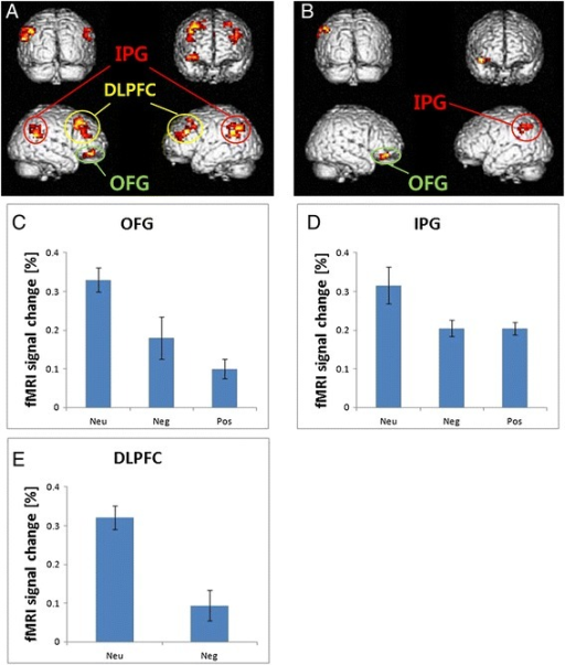 Neuroimaging results: brain regions activated in delay discounting task. (A) Neutral minus negative emotional condition. (B) Neutral minus positive emotional condition. (C, D, E) Shown are the mean activations of the orbitofrontal gyrus (OFG), inferior parietal gyrus (IPG), and dorsalateral prefrontal cortex (DLPFC) expressed as percent signal change. In these regions, activation was greatest in the neutral condition. Neu neutral, Neg negative, Pos positive.