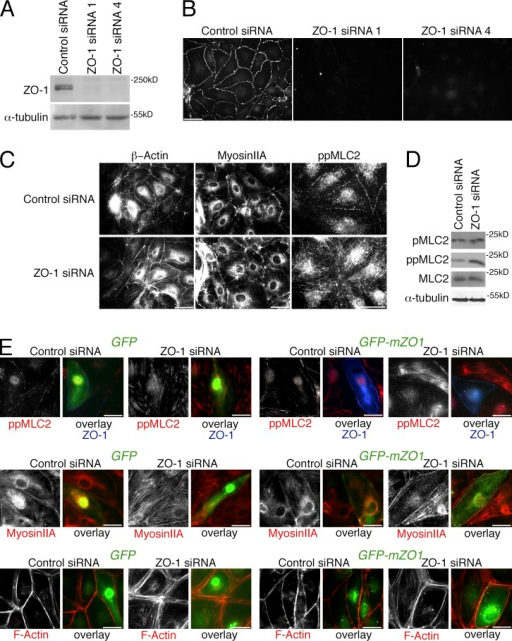 ZO-1 regulates the endothelial actomyosin distribution. (A–C) Cells transfected with nontargeting (Control) siRNA or siRNAs directed against ZO-1 were analyzed by immunoblotting for ZO-1 and α-tubulin expression (A), or processed for immunofluorescence microscopy using antibodies against ZO-1 (B) or β-actin, myosin IIA, or double-phosphorylated MLC2 (C). (D) Cells transfected with siRNAs were analyzed by immunoblotting for single- and double-phosphorylated, as well as total, MLC2, and, as a loading control, α-tubulin. (E) Cells that had been transfected with siRNAs as indicated were additionally transfected with GFP or GFP-mZO1, a fusion protein constructed with a mouse ZO-1 cDNA, 24 h before analysis. The cells were then fixed and stained as indicated to monitor loss of stress fibers and increased junctional staining of F-actin and myosin upon ZO-1 reexpression. Bars: (A–C) 40 µm; (E) 20 µm.