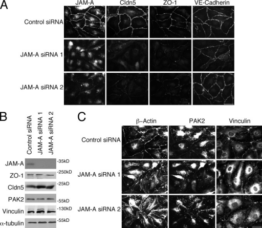 JAM-A down-regulation redistributes ZO-1 and claudin-5, and induces focal adhesions. (A and C) Cells transfected with control or JAM-A siRNAs were analyzed by immunofluorescence for the indicated proteins. (B) Equivalent samples were analyzed by expression of the indicated proteins by immunoblotting. Results shown are representative from three duplicate experiments performed. Bars, 30 µm.