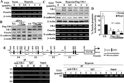 ILK inhibition by T315 reactivates Foxo3a gene expression under hypoxia by abolishing YB-1-mediated transcriptional repression in PC-3 cells(A) RT-PCR analyses of the effect of T315 on hypoxia-induced changes in YB-1 and Foxo3a expression. (B) Western blot analysis of the effect of siRNA-mediated knockdown (left) and ectopic expression (right) of YB-1 on expression of Foxo3a and E-cadherin. (C) Effect of ectopic expression of YB-1 on T315-induced upregulation of Foxo3a and E-cadherin expression in hypoxia-treated PC-3 cells. Upper, Western blot; lower, RT-PCR. (D) Luciferase reporter assays of the effect of ectopically expressed YB-1 on Foxo3a promoter activity under normoxic and hypoxic conditions. Data are presented as means ± S.D. (n = 6). *p < 0.001, compared to the respective controls. (E) Upper, depiction of 4 regions (F1–4) in the Foxo3a gene promoter containing putative YB-1 binding elements (indicated by vertical bars). Lower left, ChIP analysis of selective YB-1 binding to different regions of the Foxo3a promoter in response to hypoxia. N, normoxia; H, hypoxia. Lower right, ChIP analysis of the effects of T315 (24 h) on hypoxia-induced YB-1 binding to the F3 region of the Foxo3a promoter.