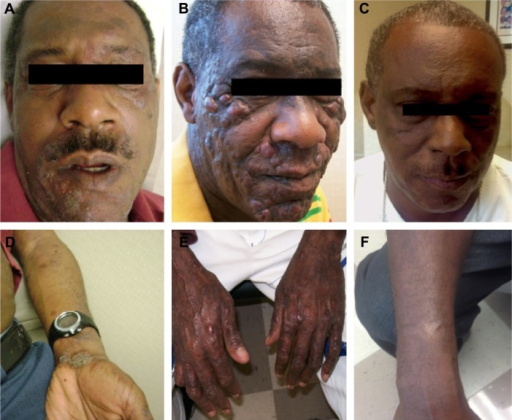 Disease course before and after TSEB.Notes: (A, D) Initial presentation of patient revealed only eczematous changes. (B, E) Rapid disease progression within 3 months demonstrating multiple tumorous nodules throughout the body. (C, F) Complete disease response after 3 months following TSEB. (A–C) Progression of disease course in the face. (D–F) Progression of disease course in upper extremities.Abbreviation: TSEB, total skin electron beam.