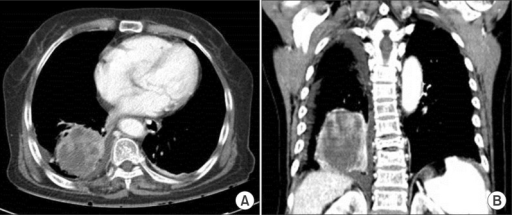 (A, B) Chest computed tomography showing a heterogeneous enhancing mass of 8 cm containing an inner low attenuating portion in the right lower lobe.