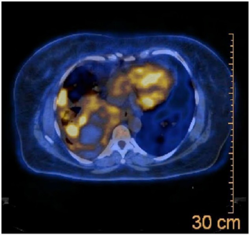 Positron emission tomography–computed tomography scan of chest showing multiple pulmonary nodules.