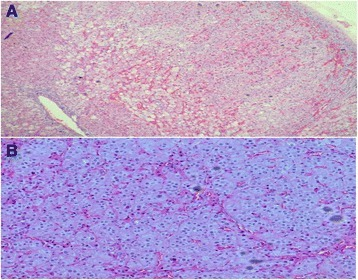 Adrenal histology [hematoxylin and eosin stain; original magnifications ×4 (a) and ×10 (b)]. Multiple nodules (2–5 mm in diameter) containing brown pigment can be seen in the adrenal cortex, composed of cells with round to ovoid nuclei with eosinophilic cytoplasm. Many cells with vacuolated, foamy cytoplasm were noted, also in addition to marked vascular congestion. Immunohistochemistry showed positivity for synaptophysin and vimentin, focal positivity for chromogranin A and S100, and a negative result for cytokeratin antibody MNF116