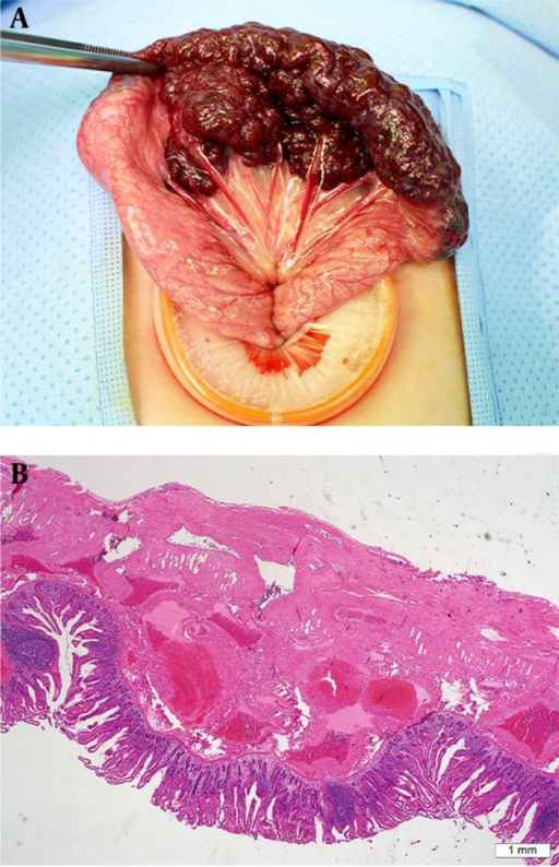 Intraoperative photograph and microscopic examination. A, Intraoperative photograph image showing the dark red and purple berry-like vascular malformation encircling the jejunum; B, Hematoxylin and eosin (H&E), 20 × magnified image showing multiple dilated vascular structures of variable sizes and the thickness of the wall affecting the bowel submucosa, muscularis propria, and subserosa.
