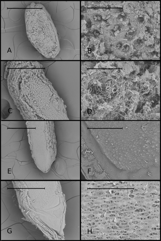Ultrastructure of upper and lower surfaces.Ultrastructure of upper and lower surfaces of the Acellular Lamellar Cephalic Bodies (scanning electron microscopy). Each row of figures represents a different structure. The upper rows show details of the upper surface of two different ALCBs (scales: (A) 500 μm; (B) 50 μm; (C) 200 μm; (D) 30 μm); lower rows (scales: (E) 500 μm; (F) 50 μm; (G) 200 μm; (H) 20 μm) show details of the lower surface of two different ALCBs.