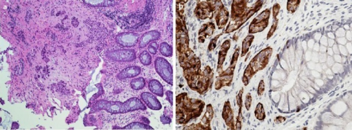 a Rectal biopsy with neuroendocrine tumor (carcinoid). Tumor cells are arranged in groups and form acini in the submucosa. HE. Low power, ×100. b Rectal biopsy with neuroendocrine tumor (carcinoid) cells strongly immunoreactive to chromogranin A. Immunohistochemical stain. ×400.