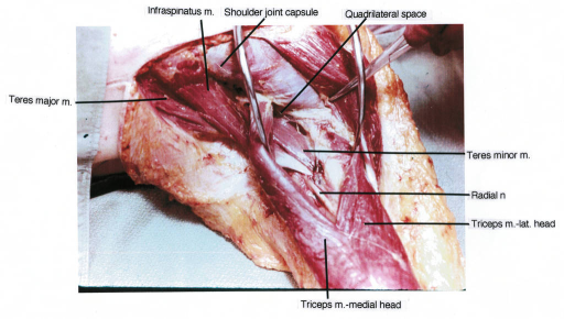 teres major muscle; infraspinatus muscle; triceps muscle; radial nerve; quadrilateral space; shoulder joint capsule