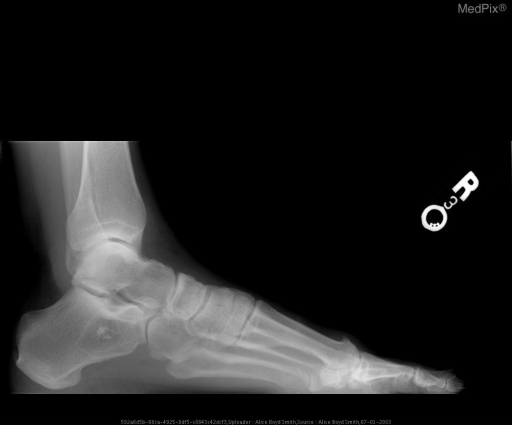 Lateral radiograph of the foot demonstrates a well-defined lytic lesion with sclerotic borders and central calcifications consistant with intraosseous lipoma.