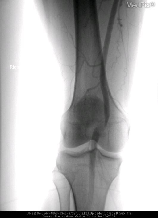 RLE frontal arteriogram at the level of the knee with the patient in passive slight plantar flexion demonstrates patent but medially deviated right popliteal artery.