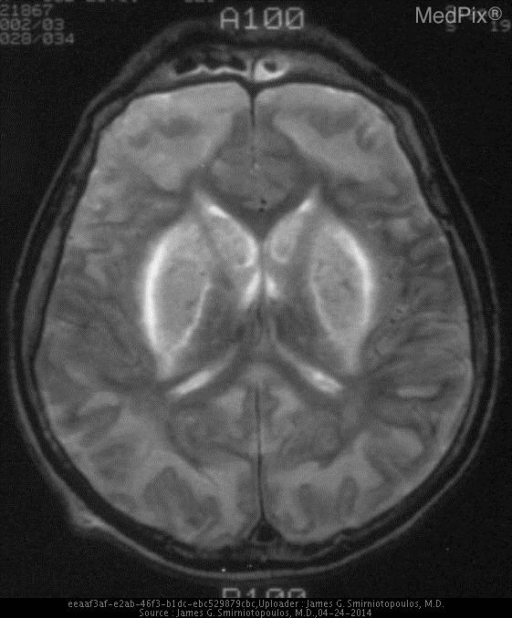 The diffuse bilateral abnormalities make this is a potentially confusing image.  What pulse sequence? CSF is bright and scalp fat is darker - so it is a T2W MRI.  There are bilateral abnormal hyperintensities in the lateral lenticular nuclei (putamen) and the caudate.