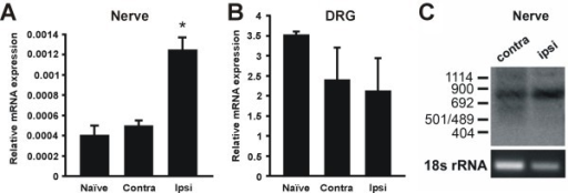 Detection of NaV1.8 mRNA in the sciatic nerve. A. NaV1.8 mRNA levels were significantly increased in the sciatic nerve ipsilateral to the injury site as compared to contralateral and uninjured DRG. (n = 3; p < 0.05, one-way ANOVA with Tukey post-hoc). B. NaV1.8 mRNA levels in SNE-injured DRG were not significantly different from those of uninjured DRG (n = 4 for uninjured DRG and n = 3 for all other samples). C: Southern blot of the Nav1.8 3' RACE product from contralateral and ipsilateral sciatic nerve. Note the presence of a distinct band representing the expected 3'RACE product of 830 bp. Sequencing of the RACE product confirmed the presence of the 3' end of the NaV1.8 coding region as well as the NaV1.8 3' un-translated region and polyA tail. Tissue was harvested 2 weeks after SNE.