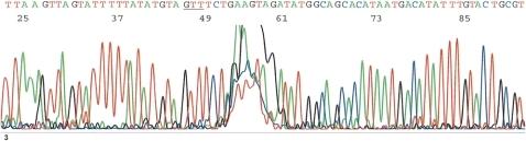 This is a less than perfect computer-generated electropherogram similar to that shown in figure 1. An imperfect base-calling sequence tracing may prevent selection of a long enough sequence inclusive of the three crucial bases GTT (underlined) for Basic Local Alignment Search Tool (BLAST) algorithm, causing ambiguity in differential genotyping of human papillomavirus 16.