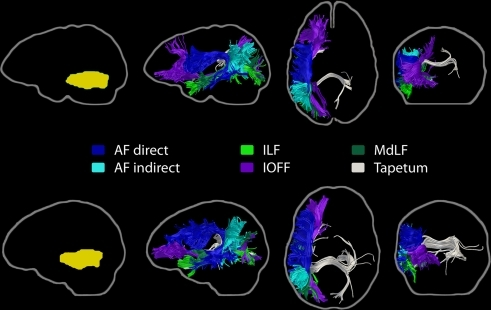 Major pathways associated with the left MTG region of interest. Streamline tractography results from two subjects are presented as exemplars. Each row depicts the individual subject's ROI warped to their own native space (left, yellow), followed by sagittal, axial, and coronal perspectives of the fiber bundles involved. The direct and indirect segments of the arcuate fasciculus, the inferior occipito-frontal fasciculus, the middle longitudinal fasciculus, the inferior longitudinal fasciculus, and transcallosal projections, consistent with the tapetum, are shown.