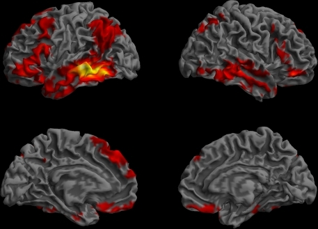 Functional connectivity profile of the left posterior middle temporal region that was previously found to be critical for the core processes supporting sentence comprehension (Dronkers et al., 2004). The regions that showed highly correlated (p < 0.01, corrected, cluster extent > 100 mm3) spontaneous activity with the left MTG seed are shown on a semi-inflated view of the cortical surface. The left and right hemispheres are shown on the left and right columns, respectively. The upper row shows the lateral surface, and the lower row, the medial surface of the cerebrum. Colors indicate t-values (dark red = lowest, yellow-white = highest, with the voxels within the ROI showing the highest correlation).