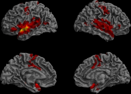 Resting-state functional connectivity of the left anterior STG/BA22 ROI. (Lateral and medial views of the left and right hemispheres, p < 0.01, corrected, cluster extent > 100 mm3, colors indicate t-values, dark red = lowest, yellow-white = highest, with the voxels within the ROI showing the highest correlation).
