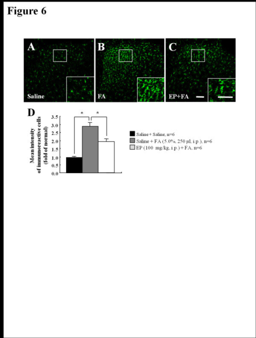 Intrathecal administration of PD-98059 inhibits formalin (5%, 50 μl, i.p.)-induced inflammatory nociception. (A) Time course of formalin-induced nociceptive behavior. The nociceptive behavior by formalin injection was significantly inhibited by intrathecal administration of PD-98059 in a dose dependent manner. Values are expressed as mean ± SEM. *P < 0.01, and **P < 0.01 vs. control rats (vehicle-pretreated and formalin-treated). (B) Total times of nociceptive behavior were remarkably blocked during phase II, but not during phase I by intrathecal administration of PD-98059 in a dose-related fashion following intraplantar injection of formalin. Values are expressed mean ± SEM. *P < 0.01 vs. control rats (vehicle-pretreated and formalin-treated).