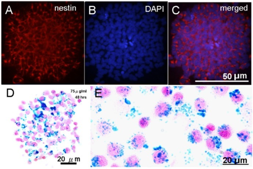 SPION-labeled NPCs formed neurospheres.(A) The neural progenitor identify confirmed by nestin immunostaining. (B) Nuclear staining by DAPI. (C) Merged nestin and DAPI staining. The majority of the cells within the sphere were nestin positive. (D) SPION labeling was examined by PB staining with nuclear fast red counterstain. (E) An enlarged view of dissociated SPION labeled NPCs stained with PB.