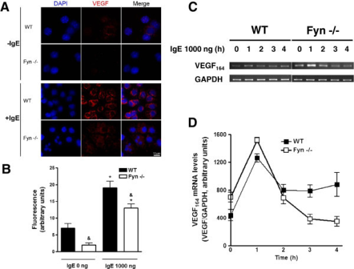 IgE-induced VEGF protein but not mRNA accumulation is affected in Fyn −/− BMMCs. (A and B) Intracellular VEGF accumulation after IgE treatment of MC. Two million WT and Fyn −/− BMMCs were stimulated with 1000 ng of IgE for eight h at 37°C. Cells were collected in a cytospin and slides were incubated in the presence of an anti-VEGF antibody (red) and DAPI (blue). Samples were processed to detect intracellular VEGF by confocal microscopy. A representative picture obtained from at least three independent experiments is shown. Scale bar = 10 μm. Mean fluorescence intensity values of VEGF signal obtained from experiments shown in A (n = 3) are represented in B. *, P < 0.0001 compared with IgE 0 ng; &, P < 0.001 compared with WT. Two way ANOVA post hoc Student-Newman-Keuls. (C and D) VEGF mRNA expression in IgE-stimulated MC. Total mRNA was purified from WT or Fyn −/− BMMCs treated with 1000 ng IgE and VEGF164 mRNA was amplified by RT-PCR. GAPDH amplification is shown as a control. Densitometric quantification of VEGF164 mRNA (n = 2) is shown in D.