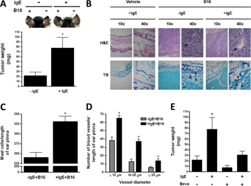 IgE causes increased melanoma tumor growth. (A) Effect of IgE on B16 melanoma tumor weight in C57BL/6J mice. Animals were treated with a single i.v. administration of saline (−IgE) or monoclonal anti-DNP IgE (750 ng/mouse; +IgE). Twenty four hours later, mice were s.c. inoculated with B16 melanoma cells (+B16) in one ear pinna and tumor weight was determined after four weeks of inoculation. Upper panel, a representative picture of vehicle or IgE-treated mice and vehicle or B16 cells-treated ear pinna. Lower panel, quantification of tumor weight. Results are shown as the mean ± SEM (n = 11-12). *, P < 0.05 versus + IgE mice. (B) Histological analysis of tissue biopsies. Ear pinna sections (2.5 μm) were stained with H&E (upper pictures) and TB (lower pictures). Blood vessels are indicated by arrows and MC by arrowheads. Photos are representative images from distinct mice (n = 2-4). Scale bar = 20 μm. (C) Quantification of MC by TB staining. Data are expressed as mean ± SEM from two sections per mouse, (n = 2-4). *, P < 0.05 versus –IgE + BL6. (D) quantification of blood vessels per ear pinna in tissue sections. Mean ± SEM (n = 3). *, P < 0.05 versus –IgE + BL6. (E) Effect of Bevacizumab on the IgE-dependent effects on melanoma tumor growth. Mice were treated with Bevacizumab (Beva; 10 mg/kg; s.c.) biweekly, starting 24 h after inoculation of melanoma cells. Ear pinna were removed and tumors were measured as in panel A. Data are expressed as the mean ± SEM (n = 4-11). *, P < 0.05 versus –IgE + BL6.