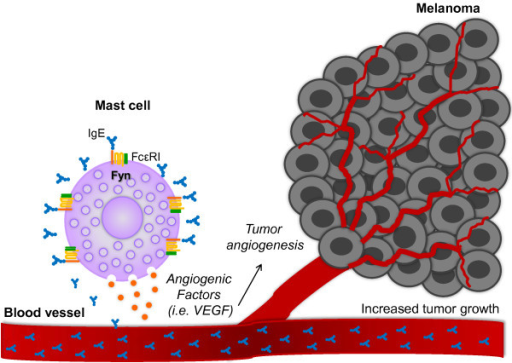 IgE improves the pro-angiogenic properties of MC through a Fyn kinase-dependent mechanism. Circulating IgE binds to the FcϵRI receptor on MC surface inducing the secretion of pro-angiogenic factors able to promote tumor angiogenesis and contribute to melanoma tumor growth. Fyn kinase is an important element on IgE-dependent production of pro-angiogenic factors in MC.