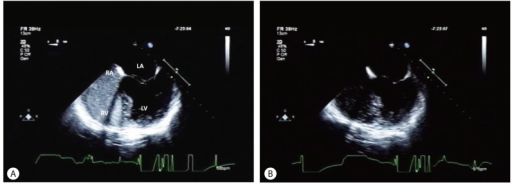 The preoperative pulmonary arteriovenous shunt had disappeared on follow-up contrast-enhanced TEE with preoperative agitated saline bubbles, on the 11th month after LT. A. Opacification of the RA and RV with microbubbles was observed after injecting microbubbles. B. Delayed opacification of the LA and LV was no longer observed after five cycles. TTE, transthoracic echocardiography, RA, right atrium, RV, right ventricle, LA, left atrium, LV, left ventricle.