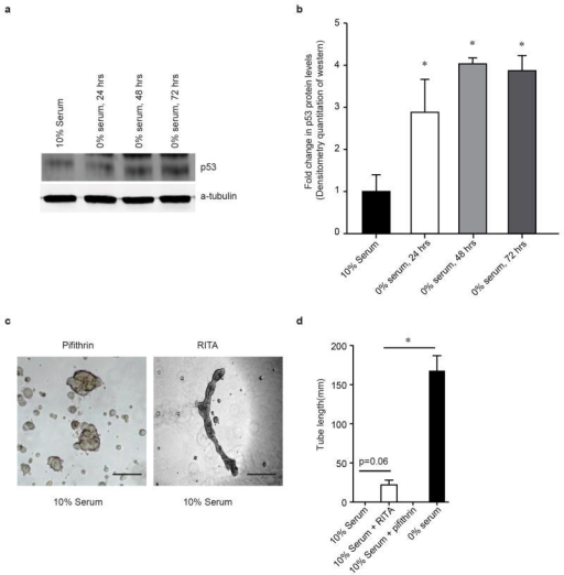 Effect of serum starvation on p53 levels and effects of Pifithrin-α and RITA on tube formation of serum fed cardiac fibroblasts(a) Western blot for p53 in cardiac fibroblasts subjected to serum starvation for 24, 48 and 72 hours (representative sample from n=3) (b) densitometric quantitation of Western blot (mean±S.E.M., *p<0.05 compared to cells in 10% serum). (c) Effect on tube formation after adding Pifithrin-α or RITA to cardiac fibroblasts grown in 10% serum Scale bar: 250μm (d) quantitation of tube formation (mean±S.E.M., *p<0.05, n=3)